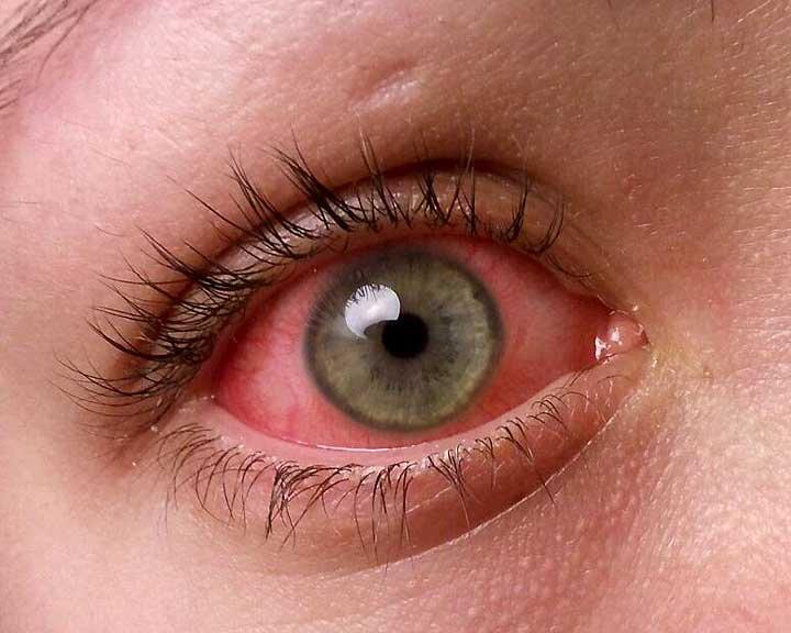 Кон'юнктивіт очей з почервонілими судинами