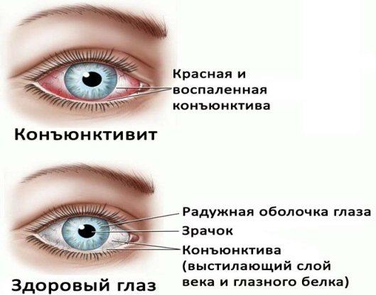 Кон'юнктивіт у дорослого: алергічний, вірусний, гнійний, хронічний. Як передається, симптоми. Лікування, ніж промивати очі. Препарати, народні засоби