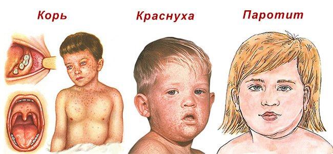 Корова краснуха у дитини.  Симптоми, стадії, фото, лікування.  Профілактика у дітей