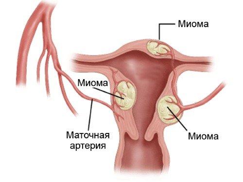 Коричневі віділення без болю и запаху у жінок.  Що це, причини и лікування