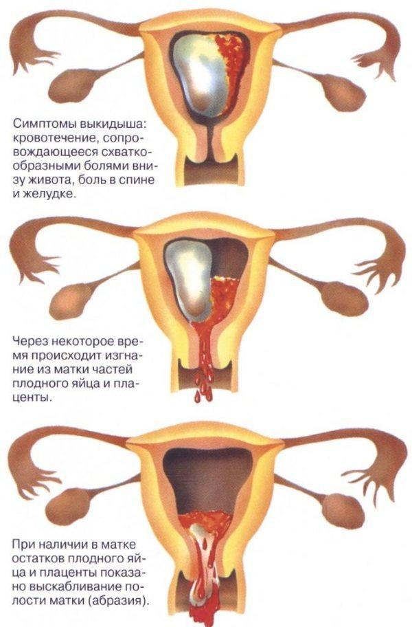 Коричневі віділення при вагітності на ранніх термінах без болю, з болем - причини