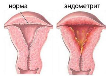Коричневі виділення в середині циклу у жінок: причини, лікування