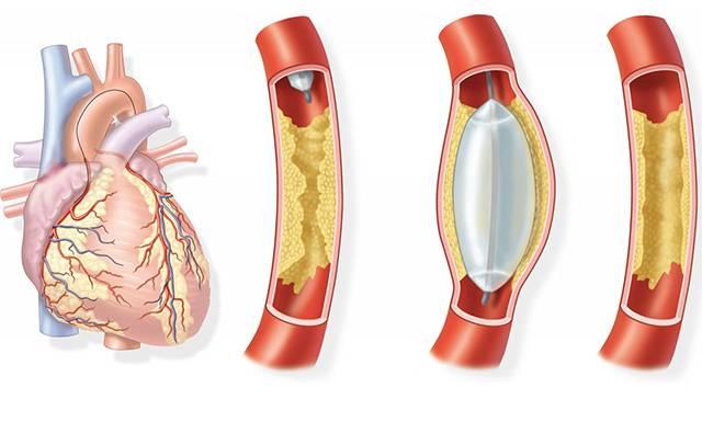 коронарна ангіопластика