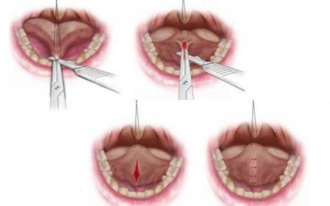 коротка вуздечка язику у дитини як визначити