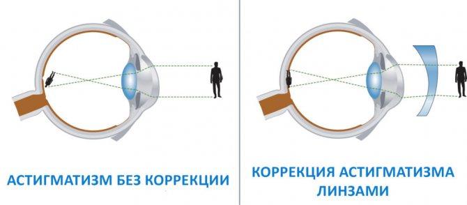 корекція астигматизму оптикою