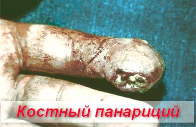 кістковий панарицій