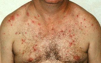 Шкірне захворювання у чоловіка