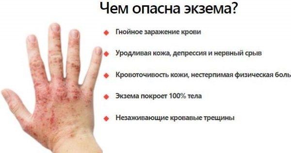 Шкірні висипання. Фото і опис на тілі, обличчі у дорослих, дітей. лікування
