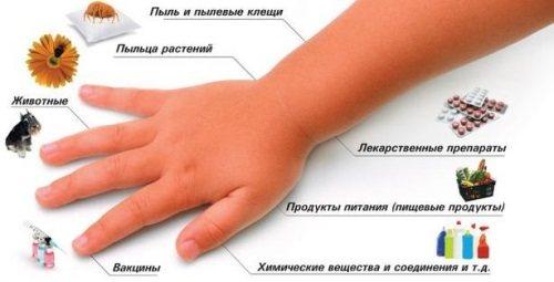 Кропив'янка: фото, симптоми и лікування у дорослих, дітей.  Як Виглядає алергічна, ідіопатічна, Гостра, хронічна, холодова.  Препарати, дієта, мазі