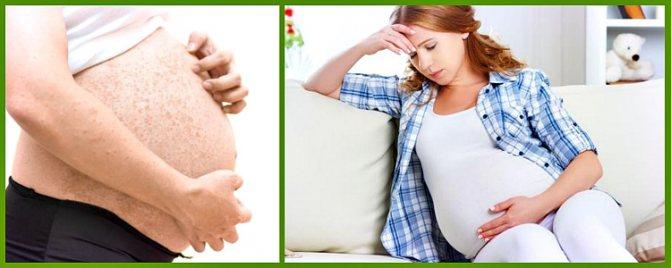 кропив'янка холодова у вагітних