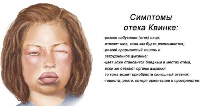 Кропив'янка у дитини.  Фото, як Виглядає, причини, симптоми и лікування.  Народні засоби, мазі, креми