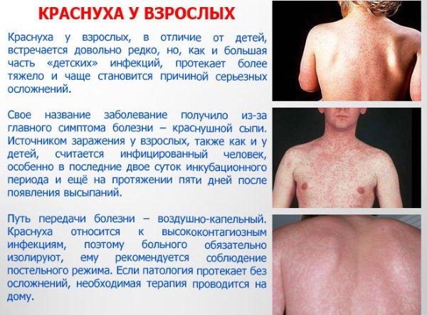 Краснуха у дорослих.  Симптоми, фото висип, стадії, шляхи передачі, лікування.  Інкубаційній период, щеплення