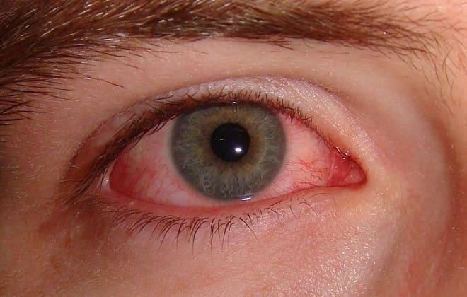 Червоне око