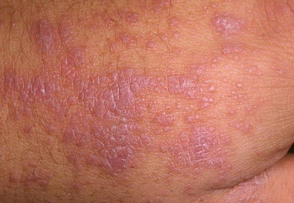 Червоний плоский лишай у людини.  Фото, стадії, ознака, лікування.  КЛІНІЧНІ рекомендації
