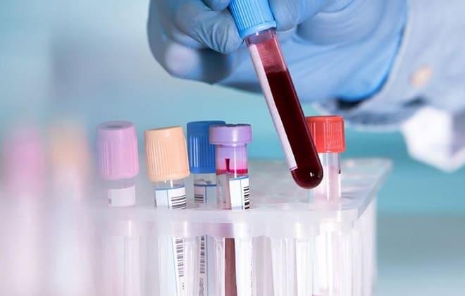 Кров на аналіз в колбі