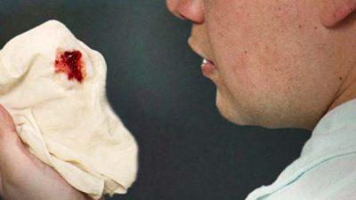 Кров на хустці