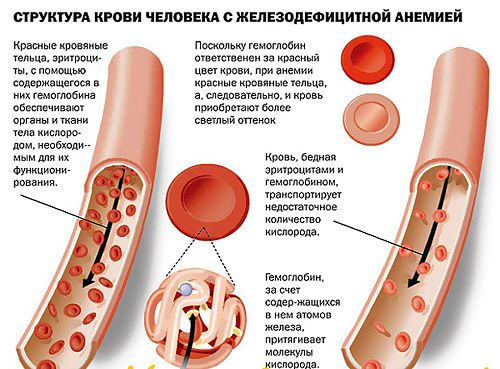 Кров при анемії