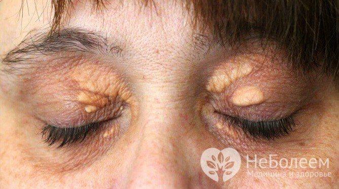 Ксантоми - одна з ознак гіперхолестеринемії