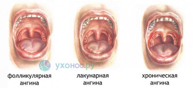 Лакунарна ангіна симптоми лікування у дорослих
