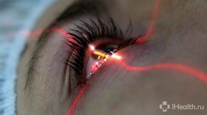 Лазерна корекція зору при короткозорості