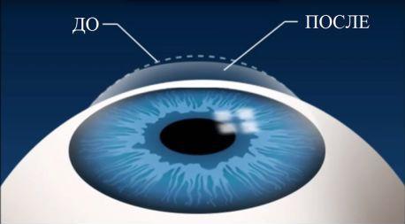 Лазерна корекція зору
