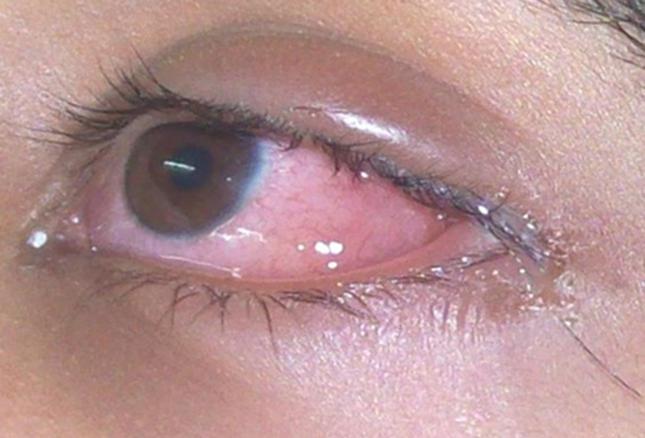 Лікування алергії краплями Зодак