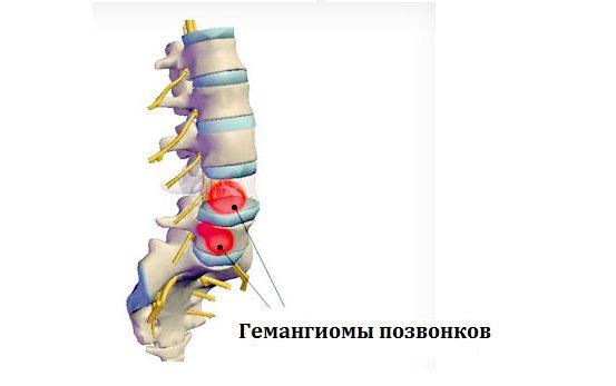 лікування гемангіома грудного відділу хребта симптоми