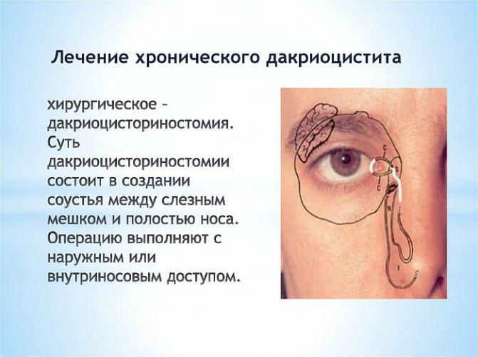 Лікування хронічного дакриоцистита