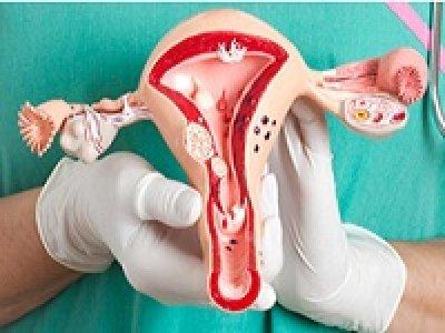 лікування хронічного ендометриту
