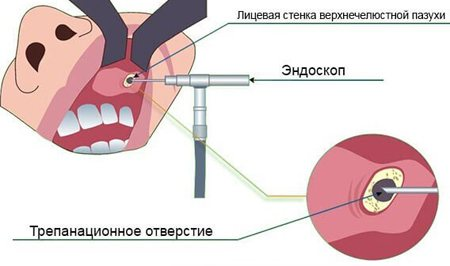 Лікування кісти верхньощелепної пазухи