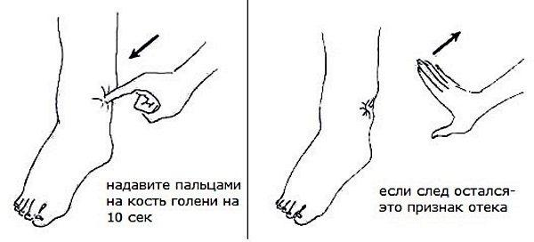 Лікування лімфостазу нижніх кінцівок в домашніх умовах народними засобами, медикаментозно, вправами, масажем, дієтою
