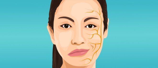 лікування парезу лицьового нерва