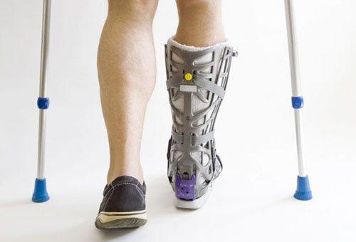 Лікування перелому кісток стопи