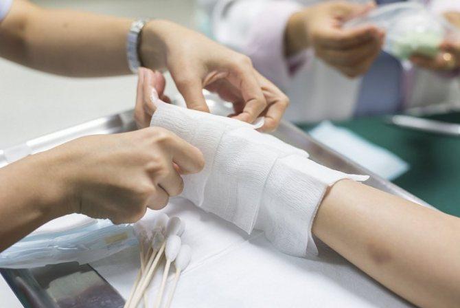 Лікування при термічному пошкодженні