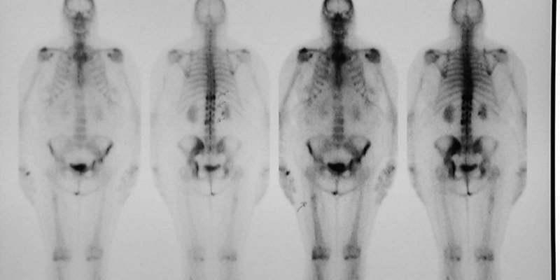 лікування раку кістки в європі