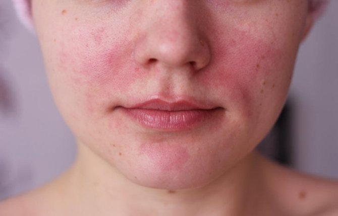 Лікування розацеа на обліччі й тілі