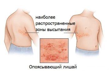 Лікування рожевого лишаю у дітей, види лішаїв
