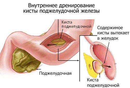 лікування за допомогою дренажу кісти