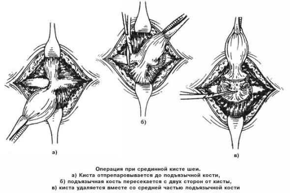 Лікування серединної кісти шиї