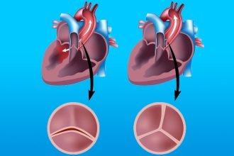 Лікування стенозу аортального клапана