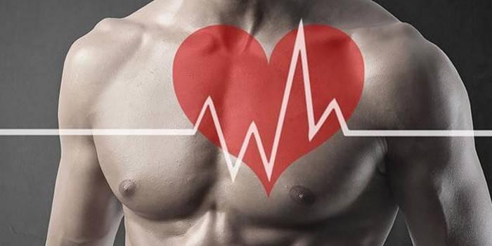 Лікування тахікардії серця