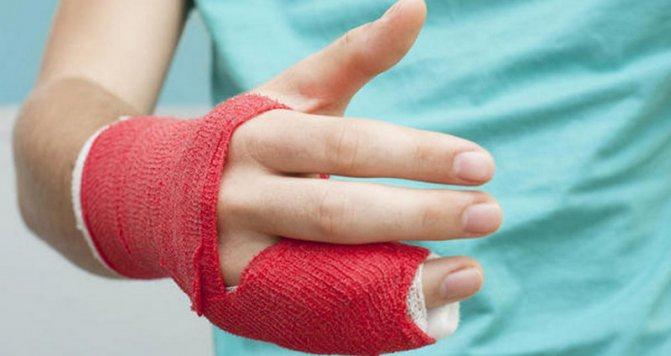 Лікування Вивих пальця руки
