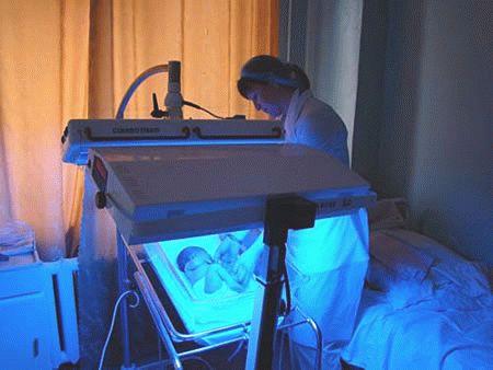 лікування жовтяниці