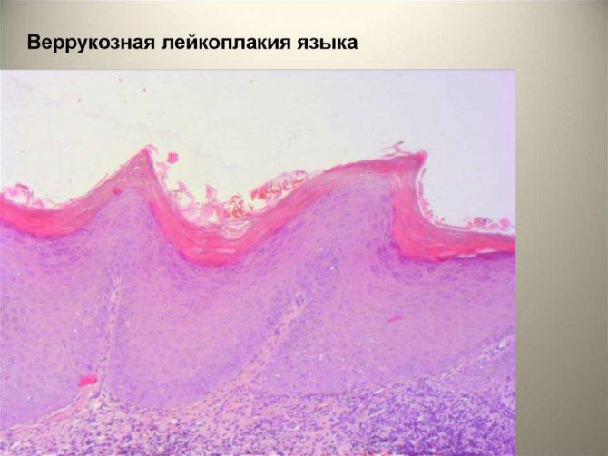 лейкоплакия порожнини рота (головний ключ)
