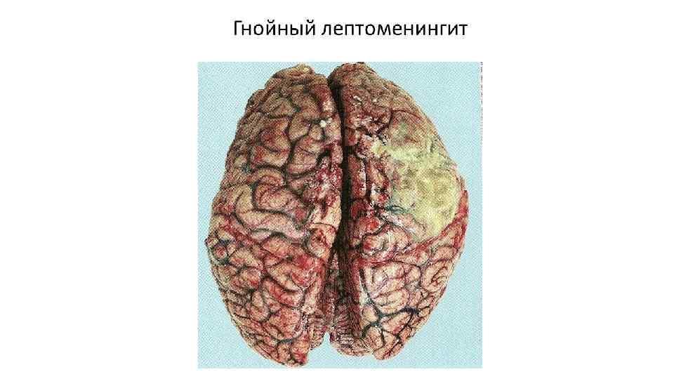 лептоменінгіт