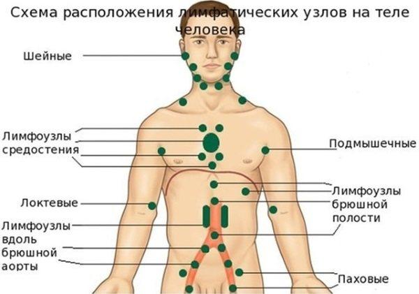 Лімфаденіт.  Симптоми, лікування у дітей, дорослих.  Що таке гостре, хронічній, шийно, підщелепної, пахові, серозний, чим небезпечний