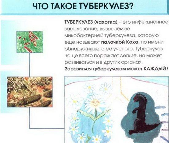 Лімфатичні вузли на тілі людини. Опис, атлас-схема, за що відповідають, як лікувати