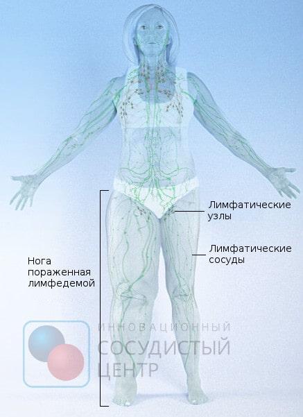 лімфостаз ноги