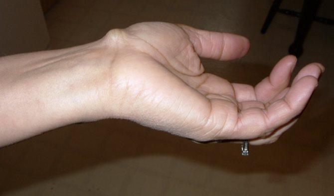 Ліпома на руці