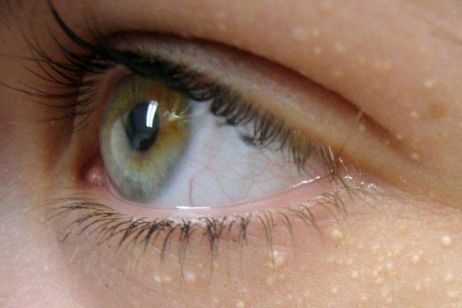 Ліпоми під очима